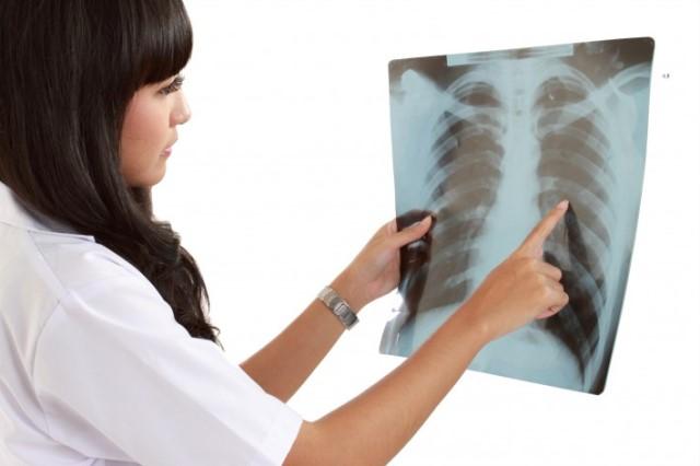 Rx Emitorace Bilaterale  Esame Diagnostico