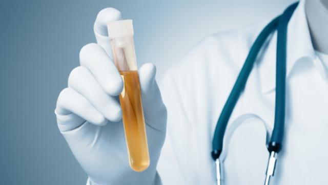 Oppiacei Urinari (Morfina Eroina Codeina) Esame Laboratorio