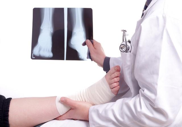 Rx Caviglia Bilaterale Sotto Carico [88.29.1] Esame Diagnostico