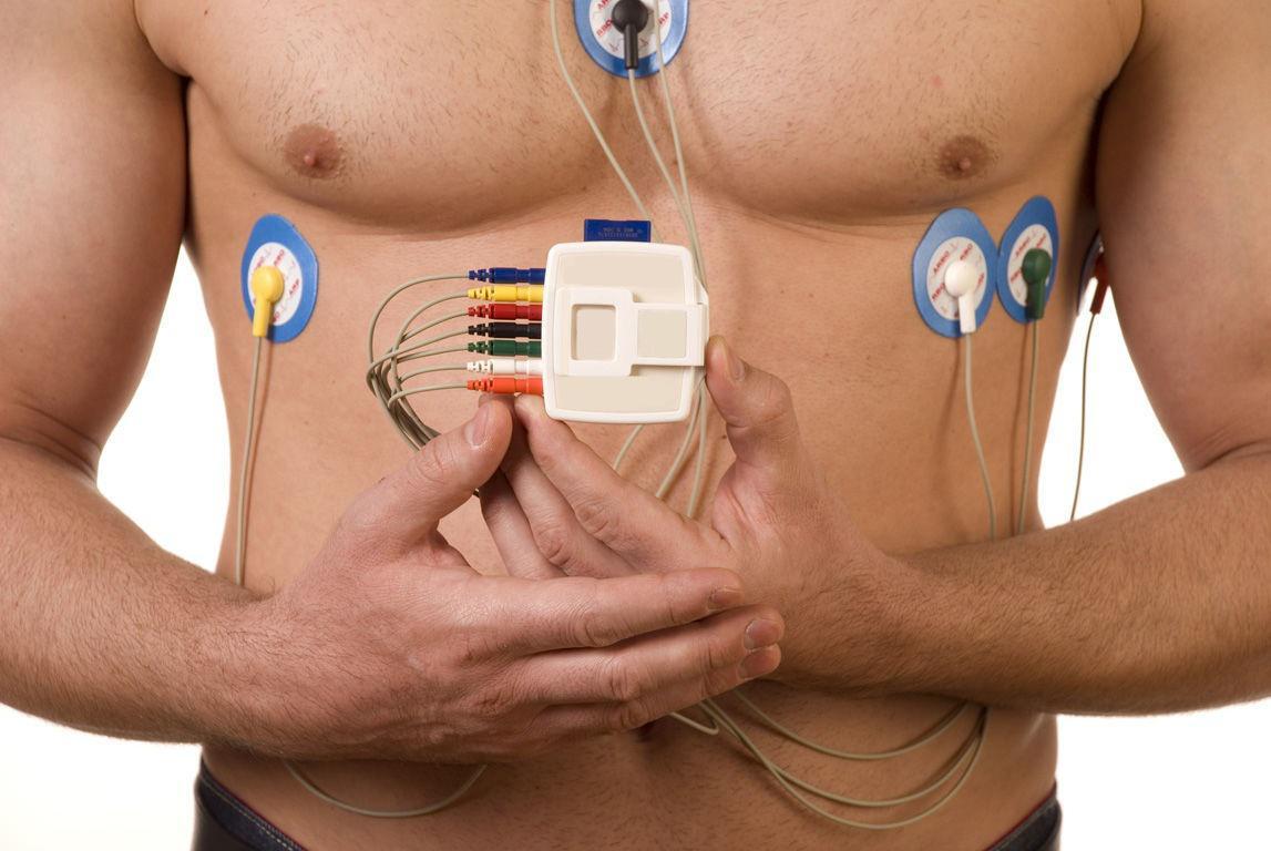 Holter Cardiaco [89.50] Esame Diagnostico