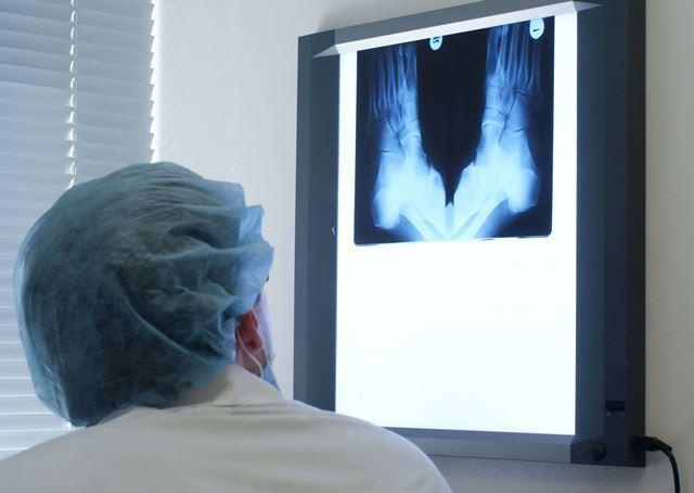 Rx Piede Bilaterale [88.28] Esame Diagnostico