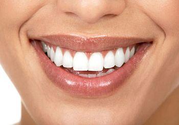 Igiene Dentale (Ablazione Tartaro) Pistoia